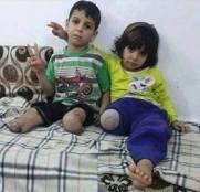 دست و پای قط شده کودکان در جنگ